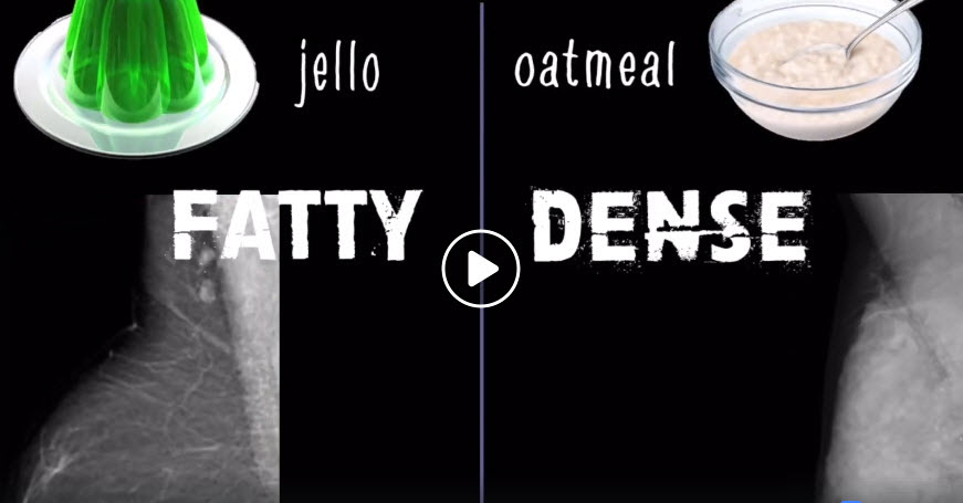 Fatty vs Dense Breast Tissue